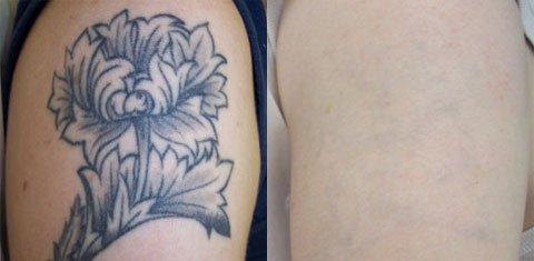 Remove Tattoos for Job