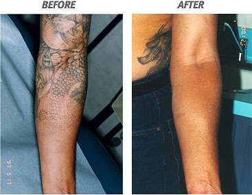 Image by laser tattoo removal
