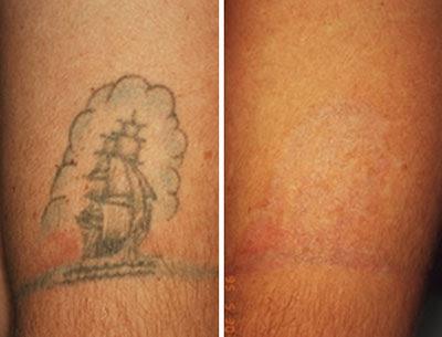Remove Bad Tattoo