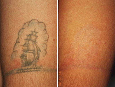 Removing Amateur Tattoos North Houston Laser Tattoo Removal