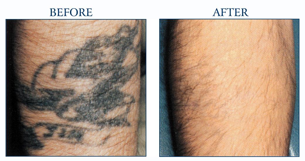 Get Rid of Faded Tattoo