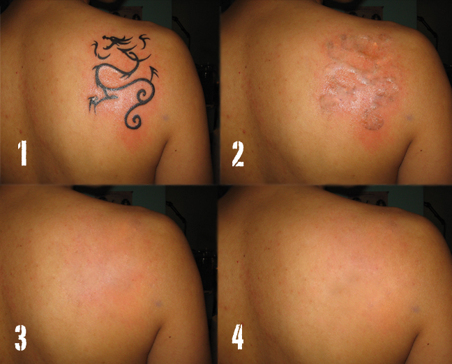 Steps to Tattoo Removal