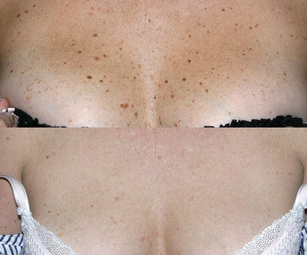 Remove dark spots and age spots