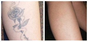 Before and After with Laser Tattoo Removal