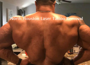 Laser Tattoo Removal - After