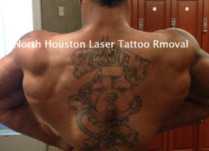 Laser Tattoo Removal - Before